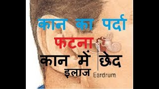 कान के पर्दे में छेद होना | कान का पर्दा फट जाए तो क्या करें | कान का पर्दा फटना लक्षण, इलाज कैसे