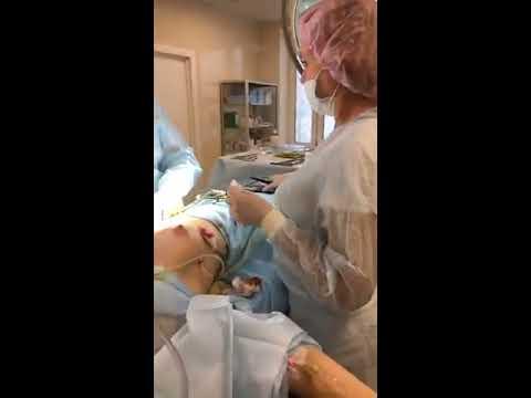 Увеличение груди прямой эфир из операционной, ответы на вопросы и результат