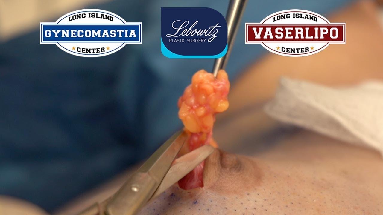 Gynecomastia Surgery: Gland Removal, Vaser Liposculpture, Renuvion & Fat Grafting | Dr. Lebowitz