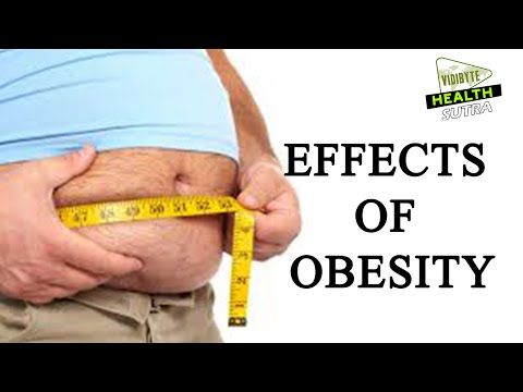 cause effect essay childhood obesity Cause and effect of childhood obesity even though facts have shown that genetics is not a cause of childhood obesity, many people still believe that childhood.