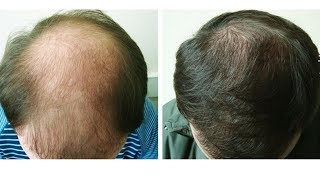 A super-recipe for hair, start to grow even on bald spots!