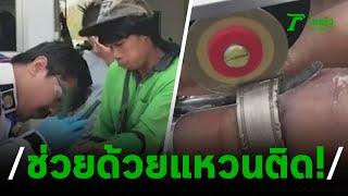 กู้ภัยเร่งช่วยหนุ่มเทศบาลแหวนติดนิ้ว | 25-02-63 | ตะลอนข่าว