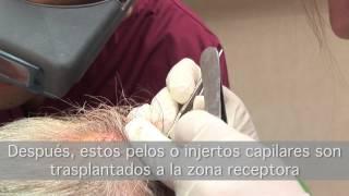 Transplante Capilar Vinci FUE - Vinci Hair Clinic