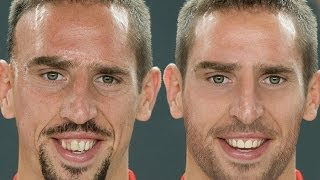 Franck Ribéry - Extreme Makeover Photoshop thumbnail