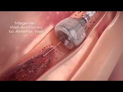 Heart Blockage Surgery or Bypass surgery