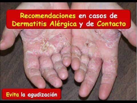 Atopichesky la dermatitis y el practicar el deporte