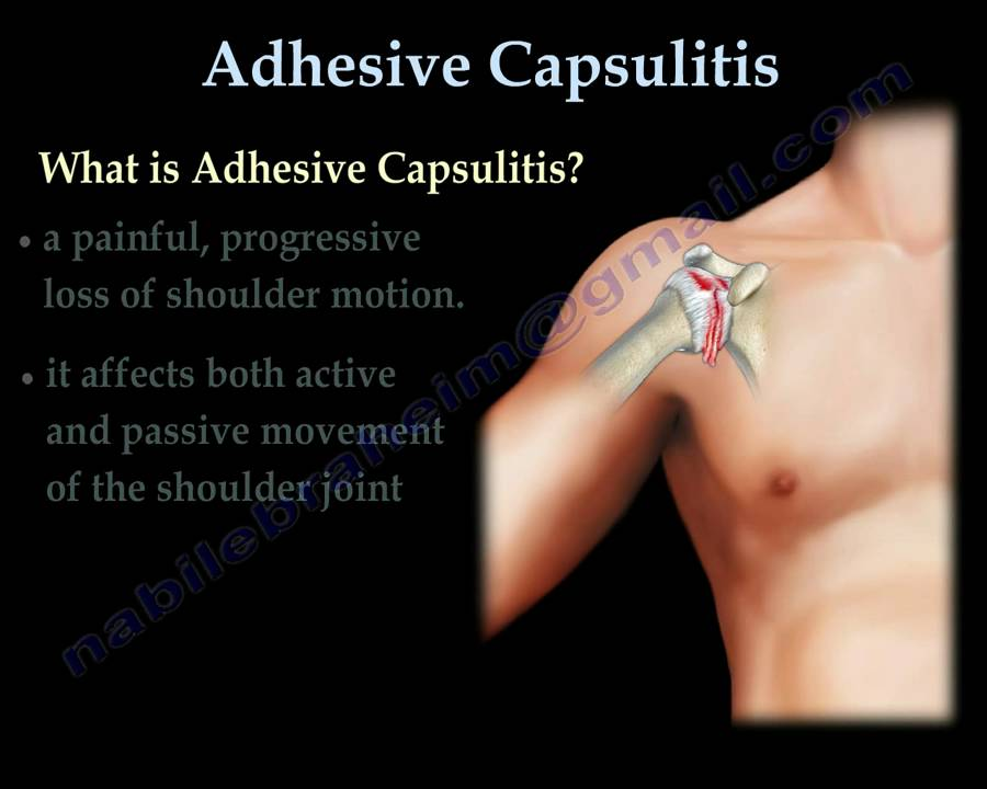 Adhesive Capsulitis ,frozen shoulder. - Everything You Need To Know ...
