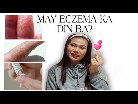 HAND ECZEMA TREATMENT IN  EFFECTIVE  WAYS
