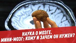 Мини-мозг: кому и зачем он нужен? - Наука о мозге