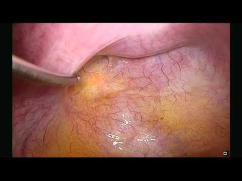 Laparoscopic Excision and Ablation of Endometriosis using the Lumenis FiberLase CO2 Fiber