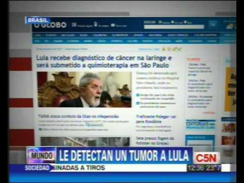C5N - SALUD: LULA CON CANCER DE LARINGE