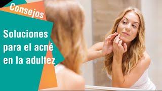 Soluciones para el acné en la adultez