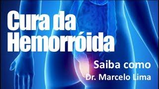 HEMORROIDA - CONHEÇA O TRATAMENTO- Dr. Marcelo Lima