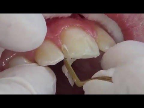 Smile Design - Dental Clinic Balaskas Antonis