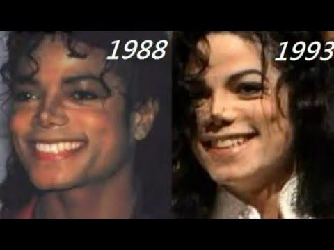Use 129 Photos To Tell You - Michael Jackson Has Not Done Too Much Plastic Surgeries