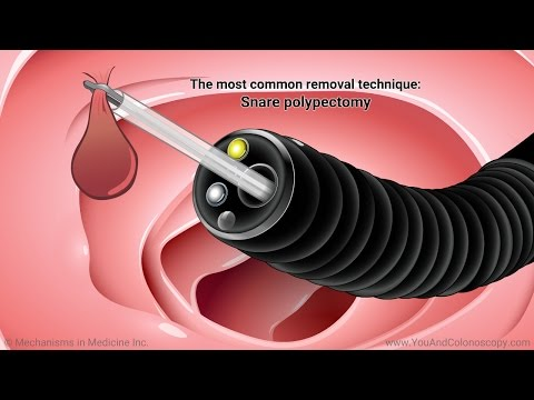 What happens during and after a colonoscopy?