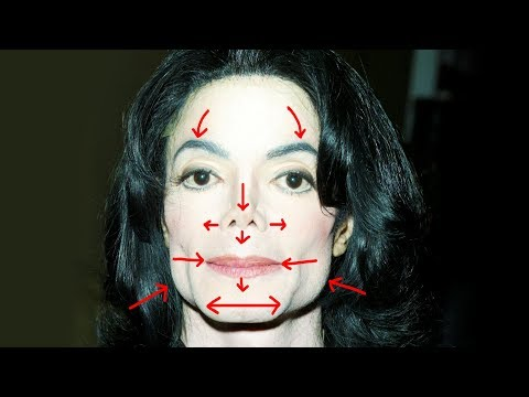 Removing MICHAEL JACKSON'S Plastic Surgery