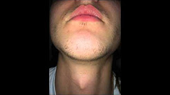 minoxidil beard experience