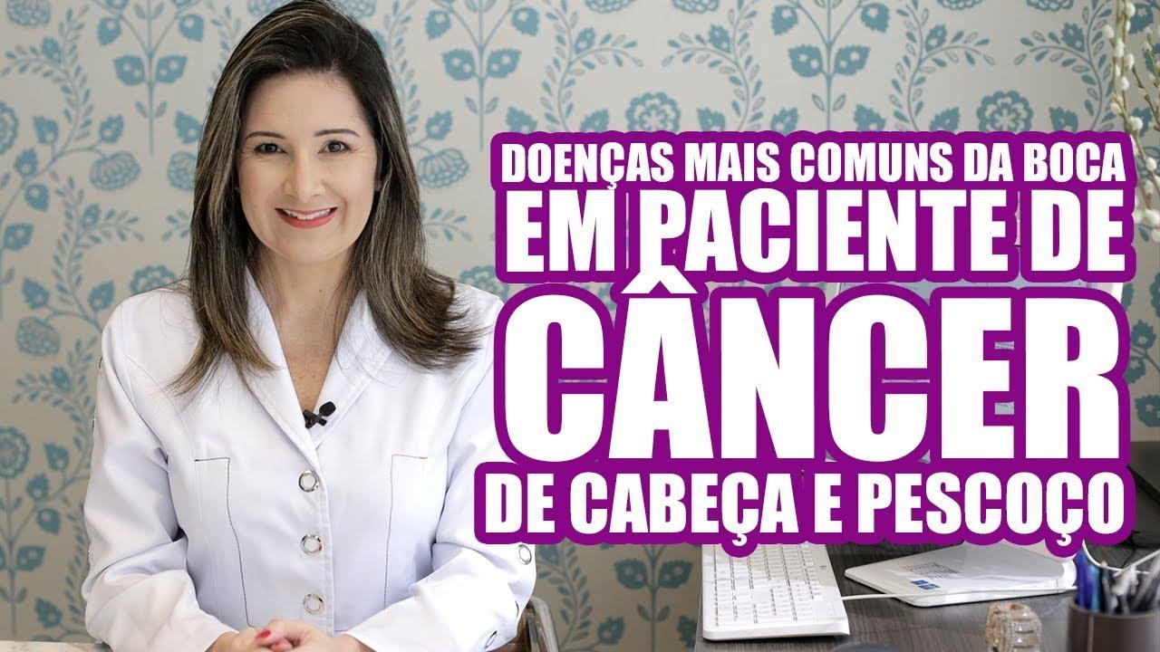 DOENÇAS BUCAIS DECORRENTES DO TRATAMENTO CONTRA O CÂNCER