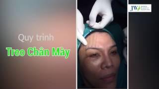 Quy Trình Treo Chân Mày – Bệnh Viện JW Hàn Quốc - TS.BS Tú Dung | 2017
