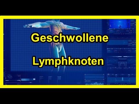 Geschwollene Lymphknoten - Vergrößerte Lymphknoten