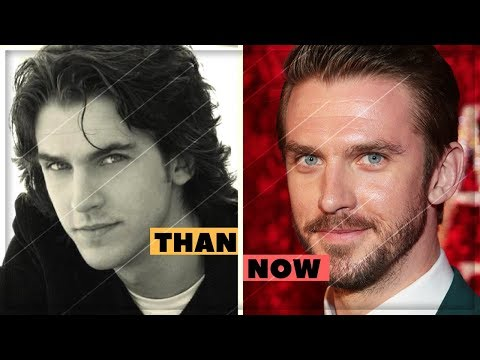 Dan Stevens Amazing Changing Looks  Dan Stevens Transformation