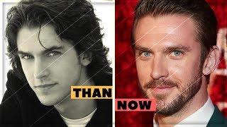 Dan Stevens Amazing Changing Looks | Dan Stevens Transformation