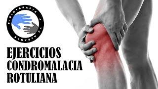 Del femoral hipoplasia lateral condilo