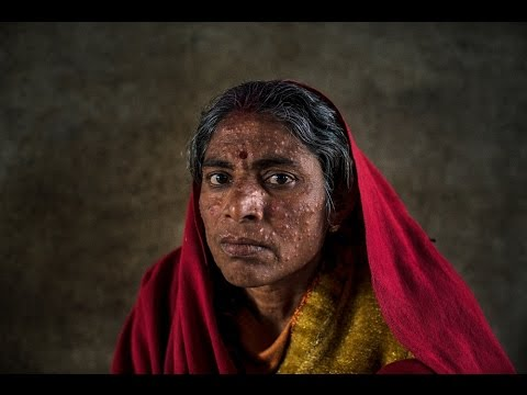 Killer Diseases: LEISHMANIASIS/ KALA AZAR