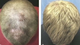 Could pill solve baldness for millions?