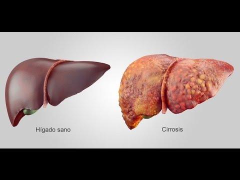 Tipos de Hepatitis  A, B, C, D, E