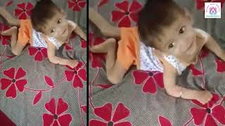 CP - hypoxic injury - Naadi Yoga baby following instructions in just 7 Months