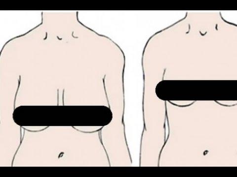 Aumento em um peito implantes redondos a depois