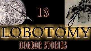 13 Lobotomy Horror Stories