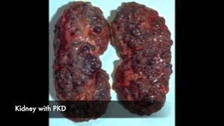 Polycystic Kidney Disease - Treatment, Symptoms & Causes