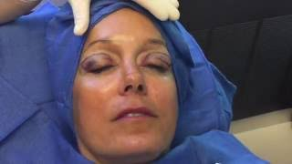 Awake in-office upper eyelid lift (Blepharoplasty)  by Dr. Kulak at The Naderi Center