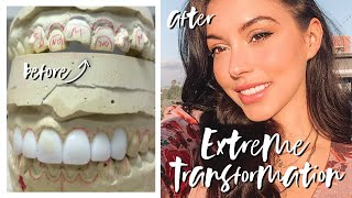 MY EXTREME SMILE TRANSFORMATION | GETTING PORCELAIN VENEERS! // ELLEKAE