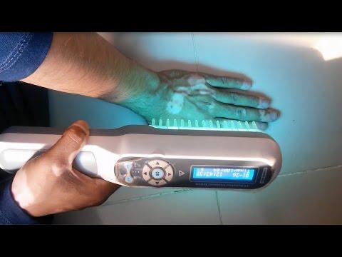 Phototherapy At Home l Narrow Band Uvb Lamps For Vitiligo