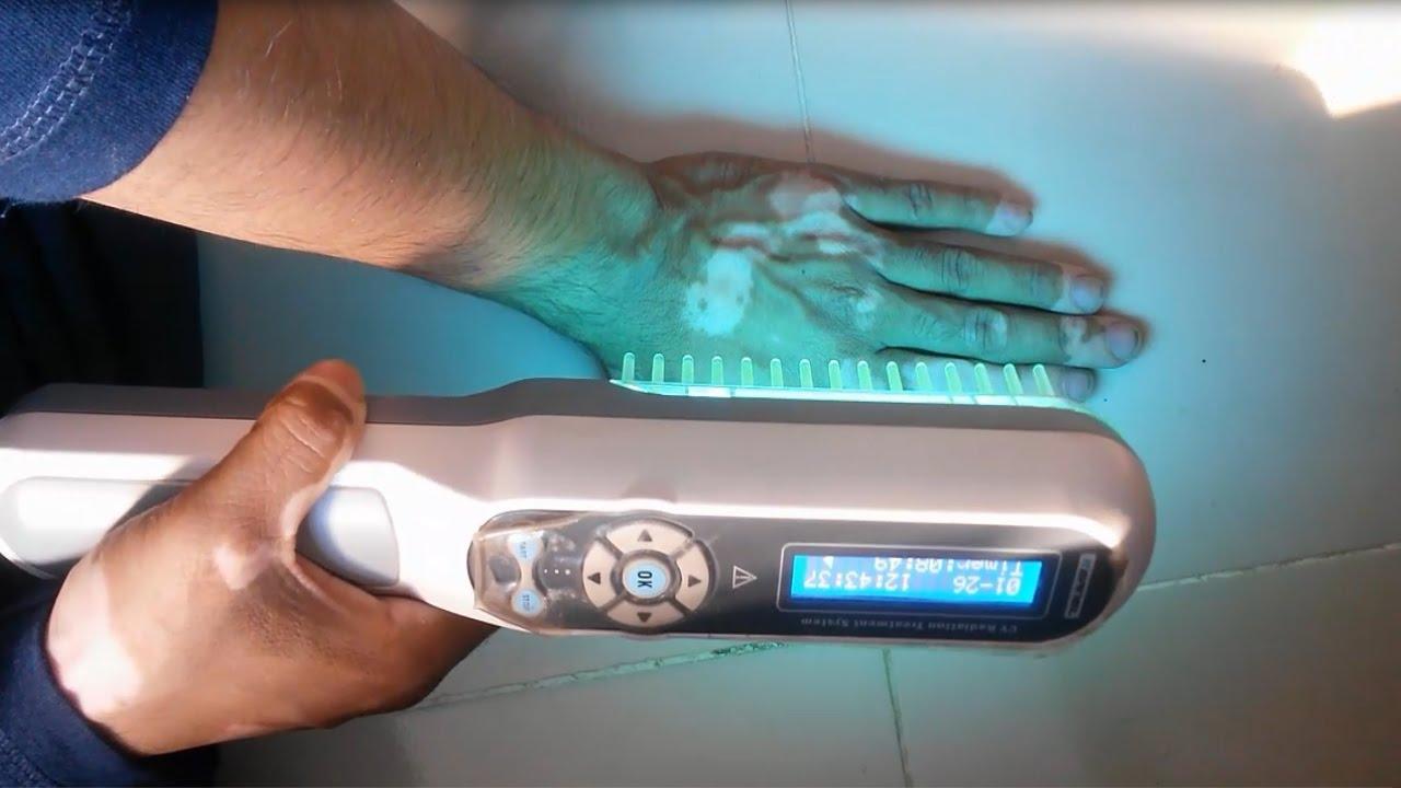 Phototherapy At Home L Narrow Band Uvb Lamps For Vitiligo Youtube