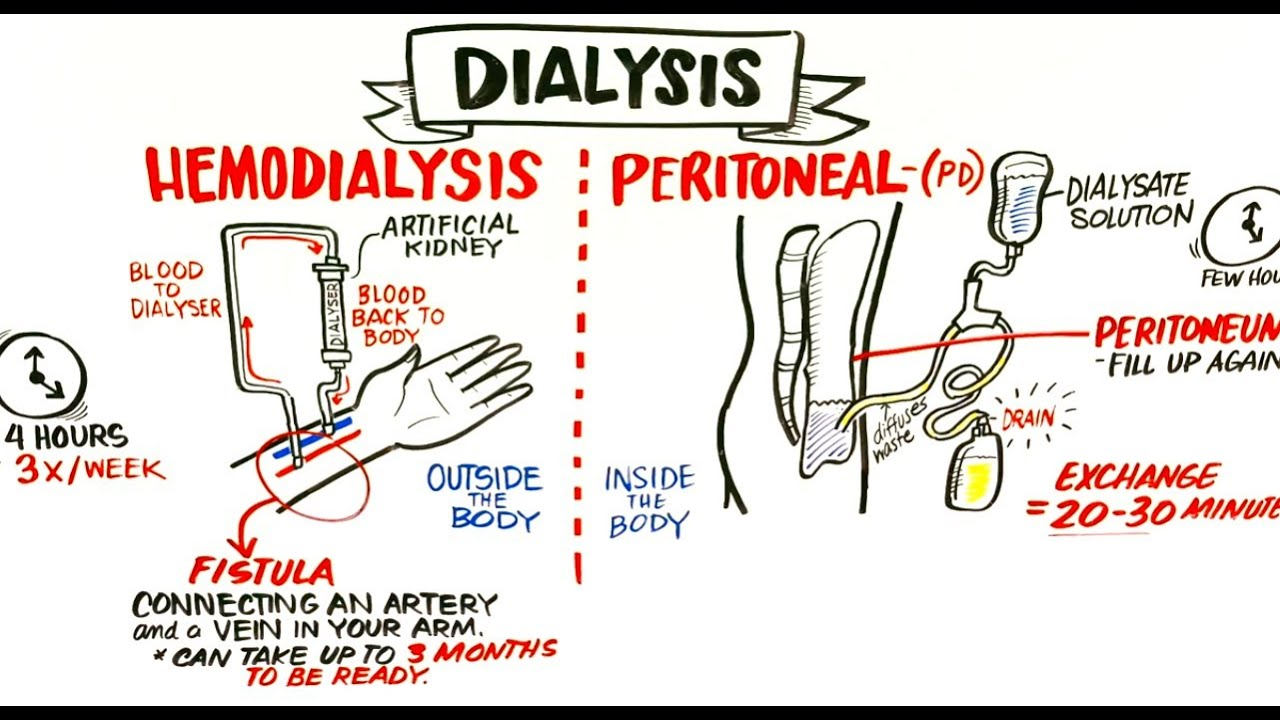 kidney dialysis Read about hemodialysis, a treatment for kidney failure using an advanced dialysis machine to remove waste products from the blood, and then returning the clean blood to the patient.