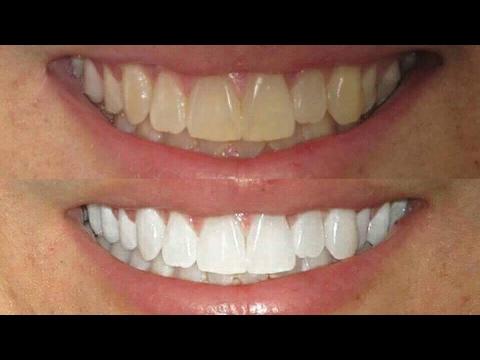 Como Clarear Os Dentes Em Casa Em 2 Minutos 3 Dicas Incriveis
