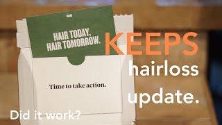 KEEPS HAIR LOSS REVIEW!