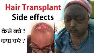 Hair transplant side effects हेयर ट्रांसप्लांट के साइड इफेक्ट जरूर देखें