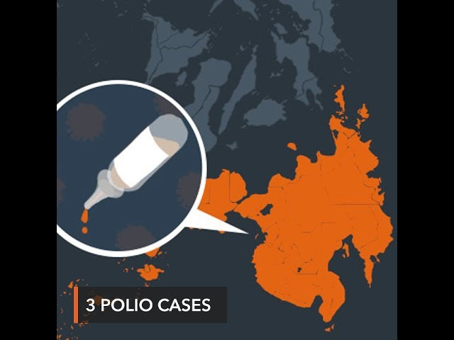 DOH confirms 3 more cases of polio in Mindanao