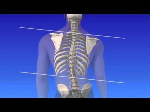 hqdefault - Can A Curved Spine Cause Back Pain