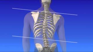 Scoliosis - Curvature of the Spine