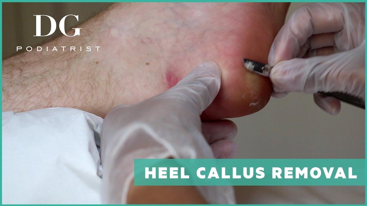 Heel callus removal: Mild - YouTube