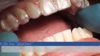 Ortodoncia Invisible: Invisalign