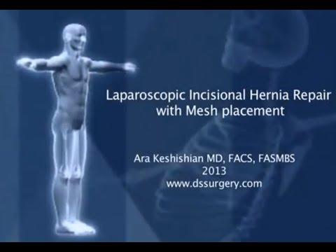 Laparoscopic Incisional Hernia Repair with Mesh Placement