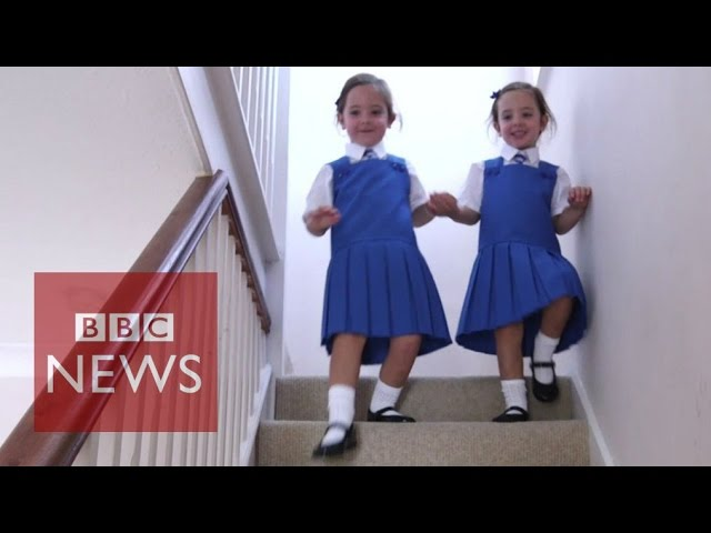 "Twins conjoined at birth and ""unlikely to survive"" start school - BBC News"